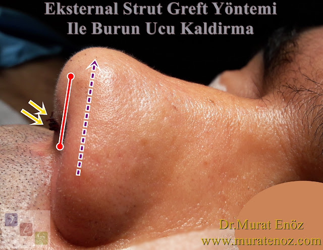 Nasal tip lifting - Nose lift - Nose lift surgery - Lift nose - Nose tip drooping - Nose tip reshaping - Nose tip lifting - Lifting the nasal tip - Technique of nasal tip Llfting - The External Strut Graft Technique