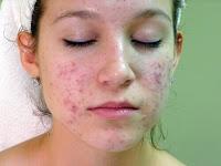 asal usul dan manfaat sirsak untuk kesehatan kecantikan
