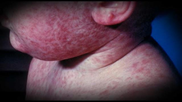 Ραγδαία η εξάπλωση της ιλαράς στην Ευρώπη (βίντεο)