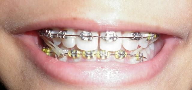 Tips sebelum memasang kawat gigi