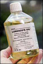 frasco-oleo-lorenzo