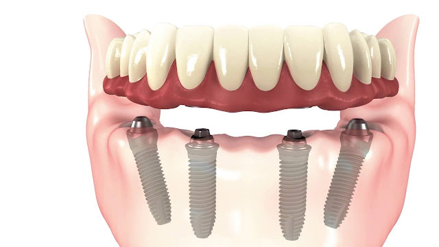 all-on-4-dental-implants-India
