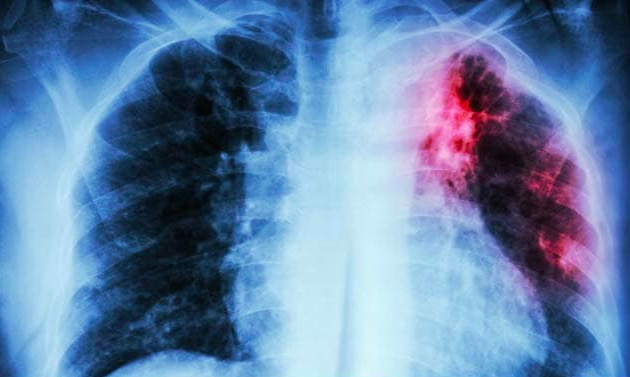 Danger Malignant Mesothelioma Cancer | Causes, Symptoms