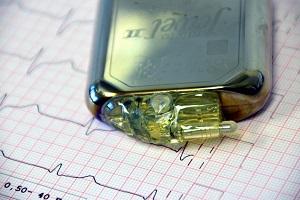 جهاز اختبار نبضات القلب ECG