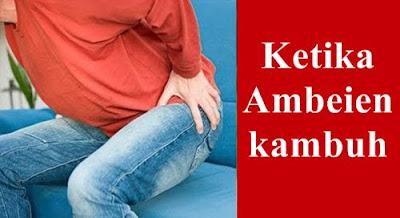 Gambar Obat Alami Ambeien Stadium 3 Ampuh Dan Aman Untuk Ibu Hamil