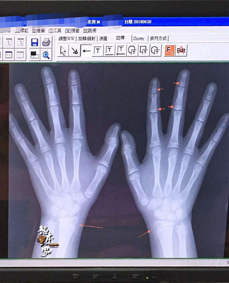 擔心孩子長不高怎麼辦|骨齡檢測與轉骨問題雙重進行記錄
