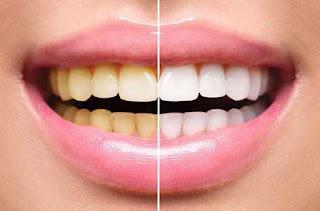 gigi putih dengan cara alami