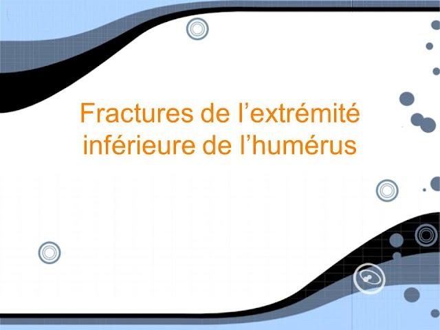 Fractures de l'extrémité inférieure de l'humérus .pdf