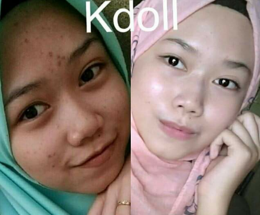 k doll beauty skin agent