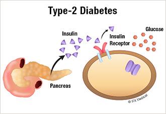 Type of Diabetes 2