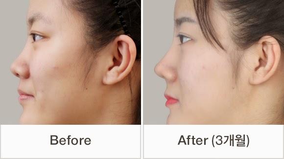 Asian Nose Bridge Surgery 41