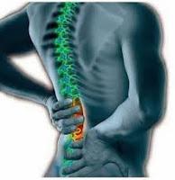 Terapi Pengobatan Sakit Pinggang