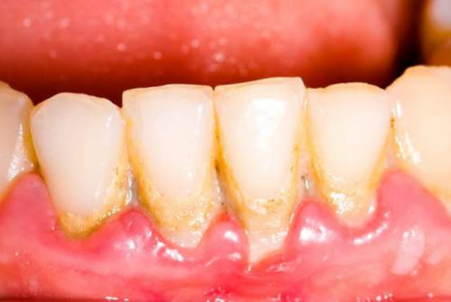Milagro enjuague su boca solo 1 minuto con esto y elimina el sarro y la placa acumulada de los dientes para siempre.!