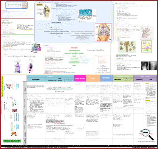 Osteoarthritis Concept Map | Pathophysiology | Clinical Presentation | OA Treatment Algorithm | Medications | OA and RA Comparison ~ Zoom out - Pharmacotherapy