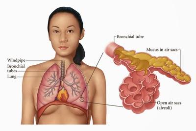 paru paru basah atau radang paru paru