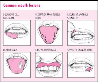 मुँह के छालों का रामबाण नुस्खा या रामवाण इलाज
