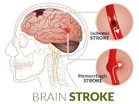 Mengatasi Penyakit Stroke Ringan Secara Alami dan Manjur