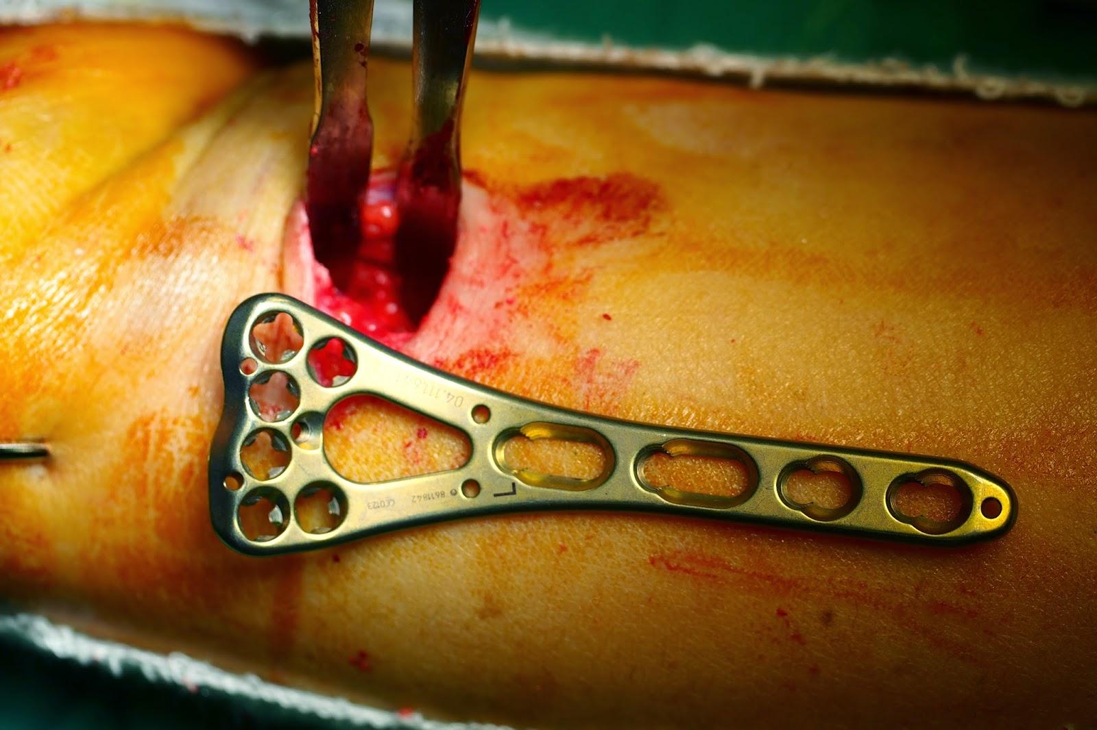 Chia-Wei Lin MD. | 林佳緯 醫師: 遠端橈骨骨折及新式微創固定手術