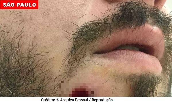 Turista é baleado no rosto e retira a bala do próprio dente