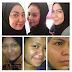 Cantiqa Skincare - Transformasi Yang Mengujakan - Testimoni
