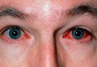 CONJUNCTIVITIS: EYE INFECTION