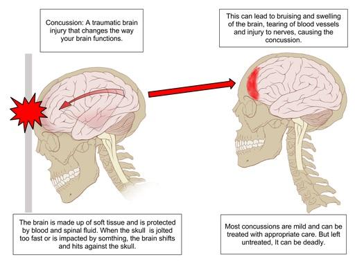 Cedera Otak