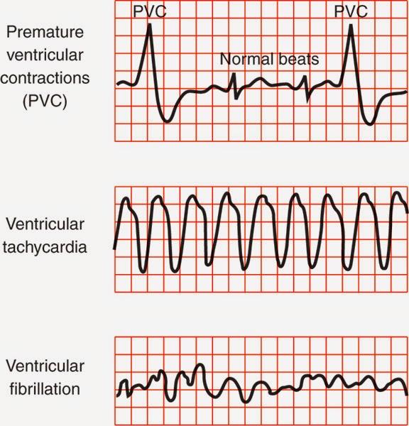 Premature Ventricular Complex, Ventricular Tachycardia, Ventricular Fibrillation