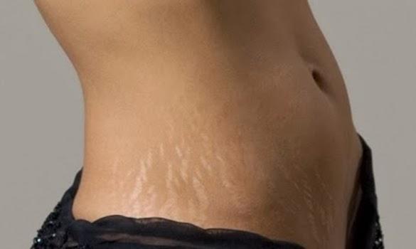 10 Cara Memutihkan Perut Hitam Setelah Melahirkan Secara Alami
