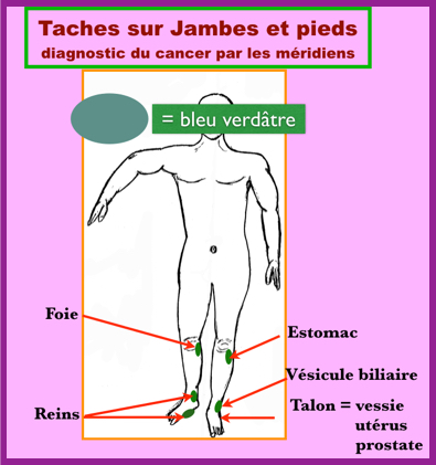 La douleur stupide à gauche au côté au dessous du dos