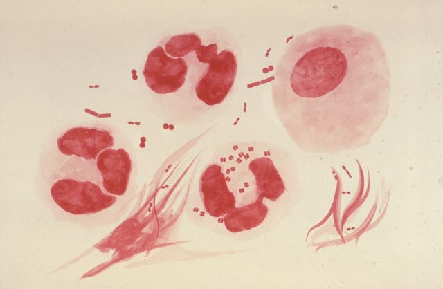 Neisseria gonorrhoeae (penyebab penyakit kencing nanah)