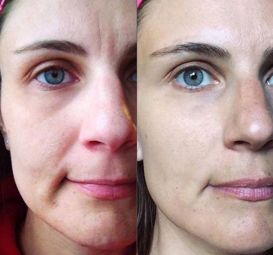 Treatments For Marionette Wrinkles Led To Daunting Invasive Steps That Carried Many Risks However More Folks Are Turning Facial Exercises