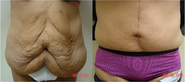 before-after-tummytuck