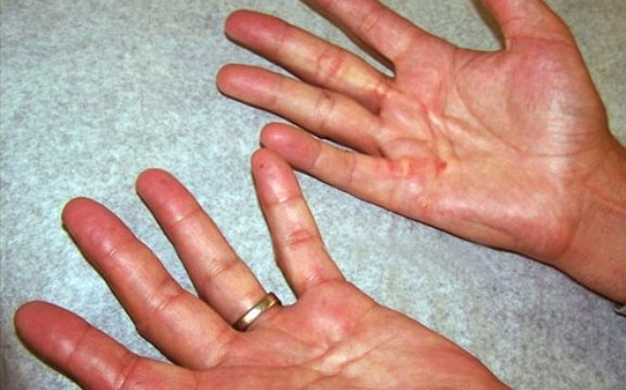 Early Dupuytren's Nodules On Hands