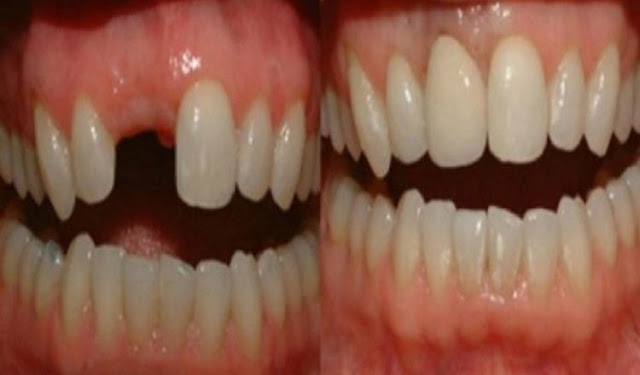 Amazing Discovery: Goodbye Dental Implants, Here's How To Grow Your Own Teeth In Just 9 Weeks