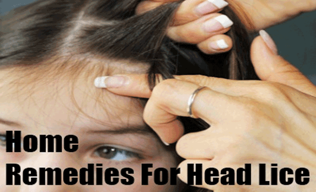 Household Remedies For Head Lice | Top Ways to Get Rid of Head Lice