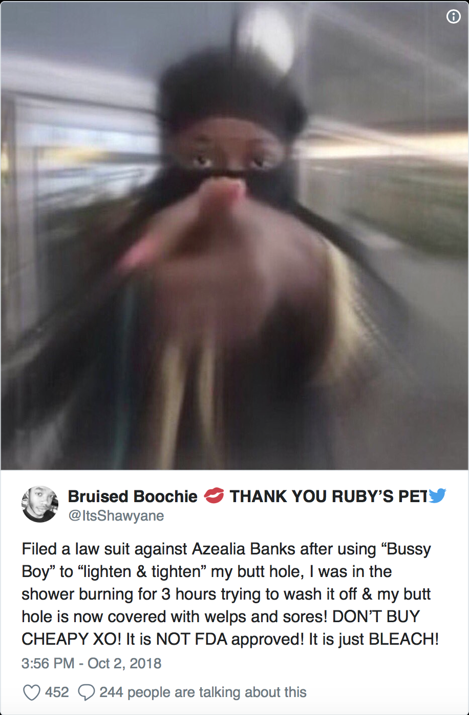 Rhymes With Snitch   Celebrity and Entertainment News   : Fan Claims Azealia  Banks Soap Burned Him