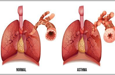 Penyakit Asma, Tanda Gejala, Penyebab dan Pengobatan