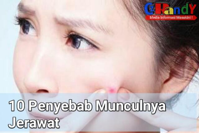 10 Penyebab Munculnya Jerawat Pada Wajah