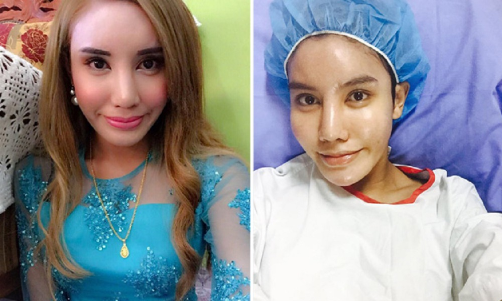 transgender, cosmetic surgery