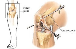 http://drbirennadkarni.com/knee-arthritis-treatment.html