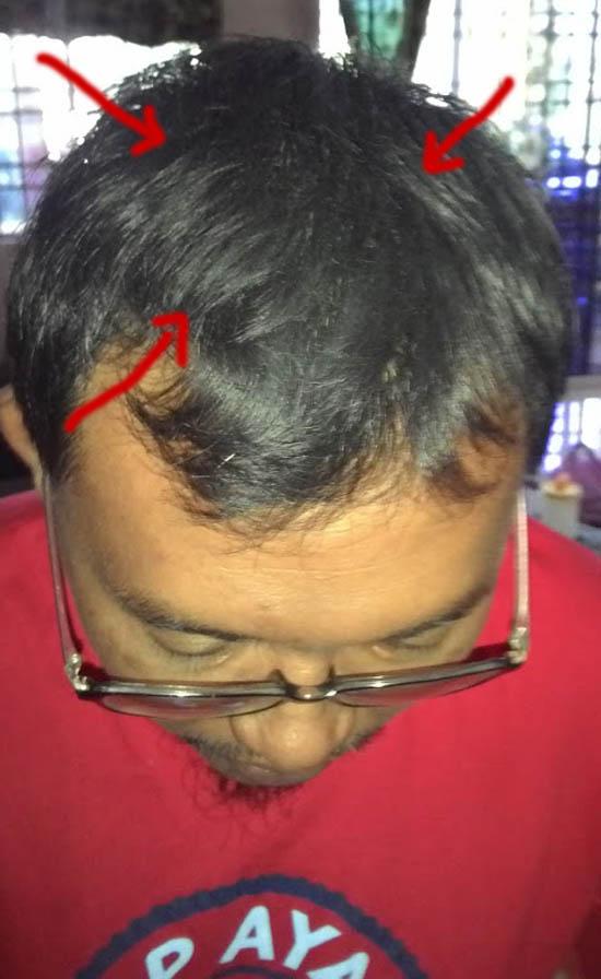 Tips lebatkan rambut dengan cara mudah dan berkesan
