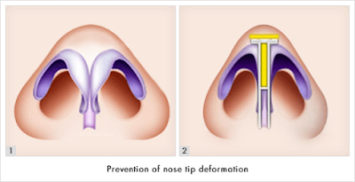 Upturned Nose Surgery at Korean Rhinoplasty Specialized Hospital Wonjin