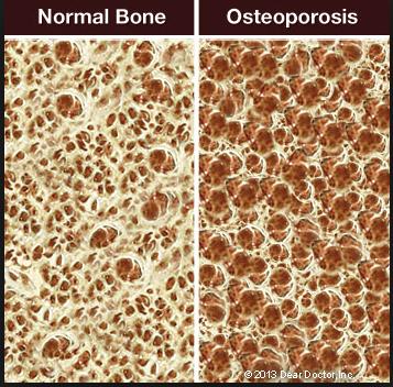 Healing Rheumatoid Arthritis with Diet