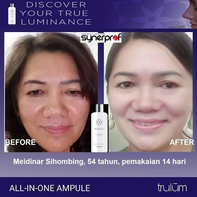 Bebas Bopeng Bekas Jerawat, Flek Hitam Tanpa Harus Laser Atau Ke Tempat Skin Care Di Kota Pontianak Kalimantan Barat