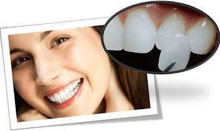 Bọc răng sứ có phải lấy tủy để giúp phục hình răng