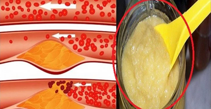 This Natural Recipe Will Clean Your Clogged Arteries, Lower Your Blood Pressure And Your Cholesterol