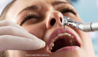 Tips hilangkan sakit gigi