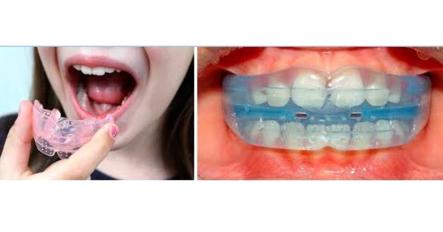 兒童及青少年牙齒隱形矯正專家 黃榆鈞醫師: MRC 功能性矯正牙套的日常