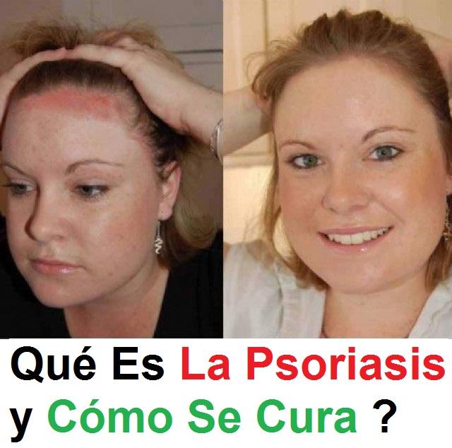 El curador que cura la psoriasis