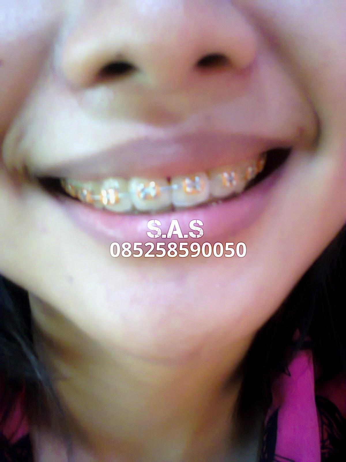 Koleksi Foto Senyum Behel Cantik dan Model Warna Karet